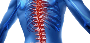 Spinal Decompression Chiropractic Care Doctors in Dallas Texas at the Dallas Pain And Wellness Chiropractic Clinic